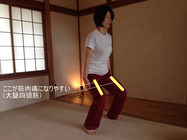 筋肉痛になりやすい大腿四頭筋