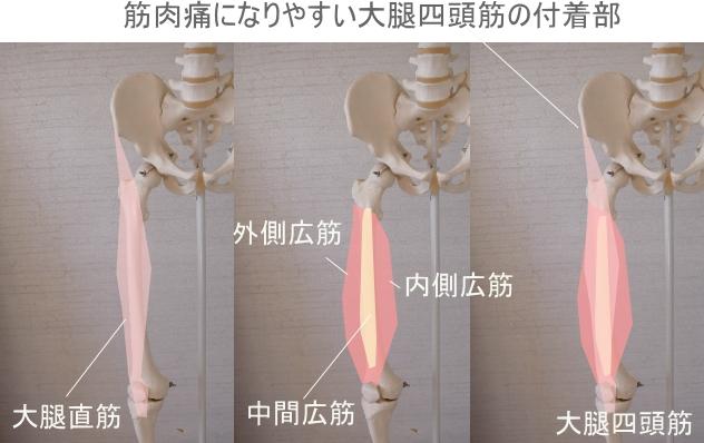 筋肉痛のスジとツボ