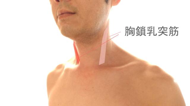寝違えの筋肉