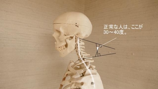 正常な頸椎