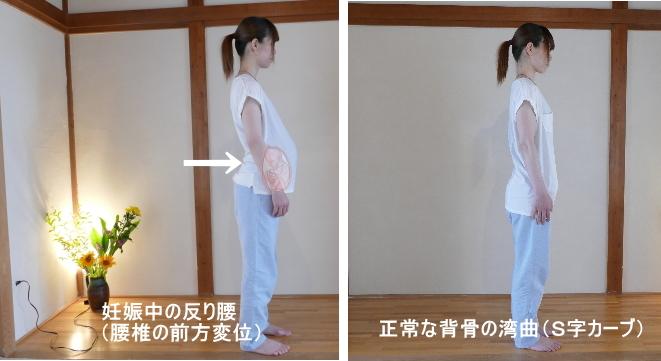 妊娠と腰椎