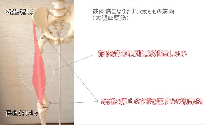ふくらはぎの筋肉痛への処置のコツ