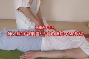 婦人病(子宮筋腫・子宮内膜症・PMSなど)
