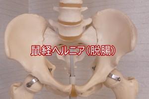 鼠経ヘルニア(脱腸)