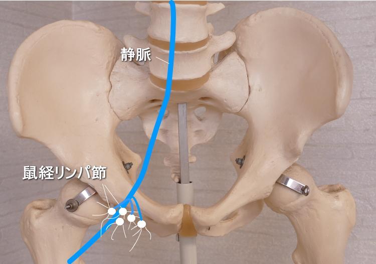 鼠経リンパ節