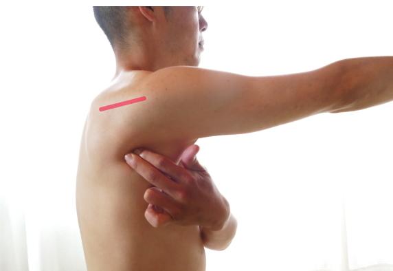 二の腕が痛いときのスジ