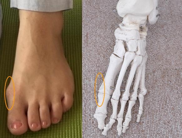 足の付け根の外側が痛い