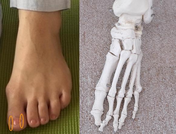 足の親指の爪が痛い