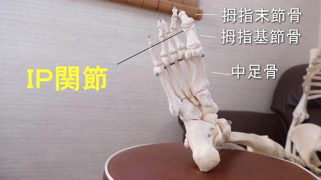 足の親指の骨の関節