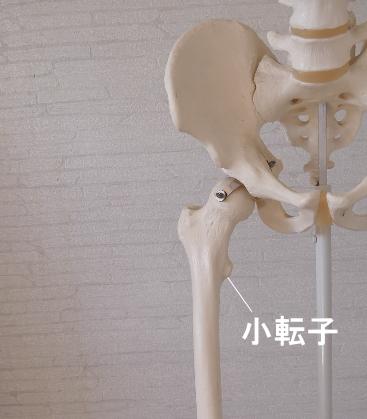 腸骨筋が停止する小転子