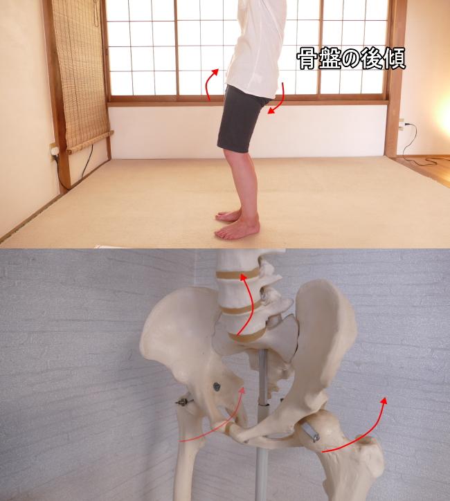 骨盤の後傾と股関節の動き