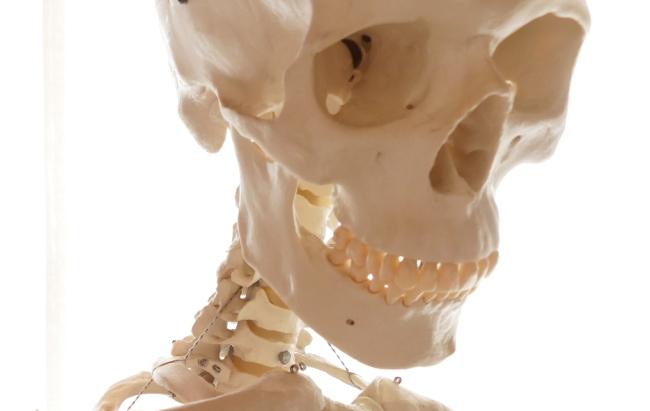 動かない歯と骨の関節
