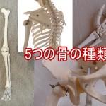 不規則形骨